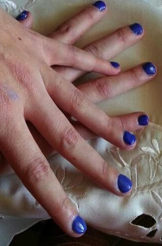 Ricostruzione unghie con gel su onicofagia